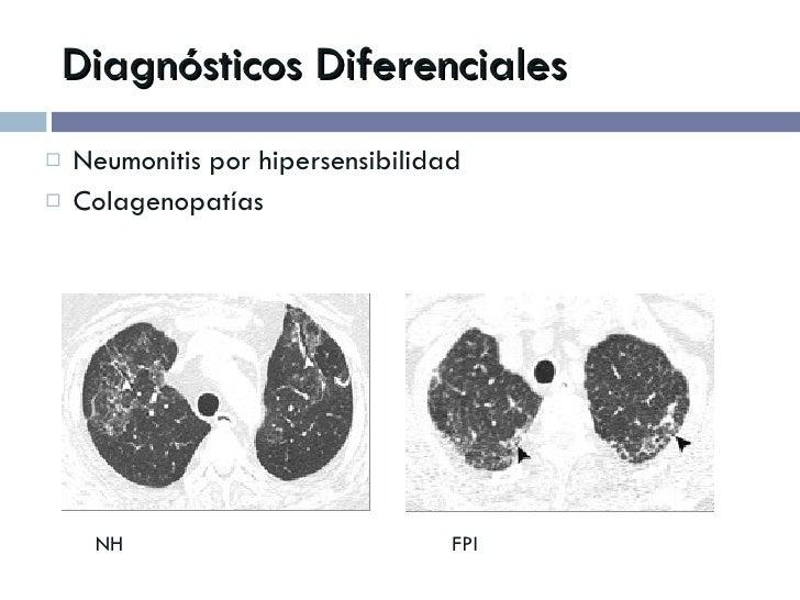 Diagnósticos Diferenciales <ul><li>Neumonitis por hipersensibilidad </li></ul><ul><li>Colagenopatías </li></ul>NH   FPI