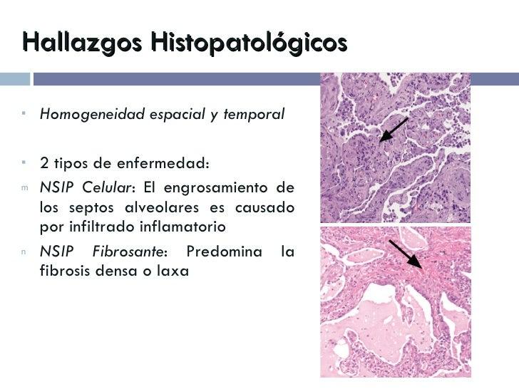 Hallazgos Histopatológicos <ul><li>Homogeneidad espacial y temporal </li></ul><ul><li>2 tipos de enfermedad: </li></ul><ul...