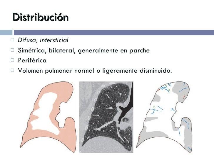 Distribución <ul><li>Difusa, intersticial </li></ul><ul><li>Simétrica, bilateral, generalmente en parche </li></ul><ul><li...
