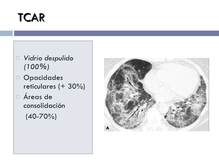 TCAR <ul><li>Vidrio despulido (100%) </li></ul><ul><li>Opacidades reticulares (+ 30%) </li></ul><ul><li>Áreas de consolida...