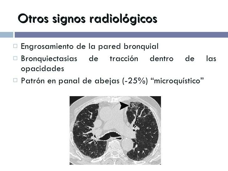 Otros signos radiológicos <ul><li>Engrosamiento de la pared bronquial </li></ul><ul><li>Bronquiectasias de tracción dentro...