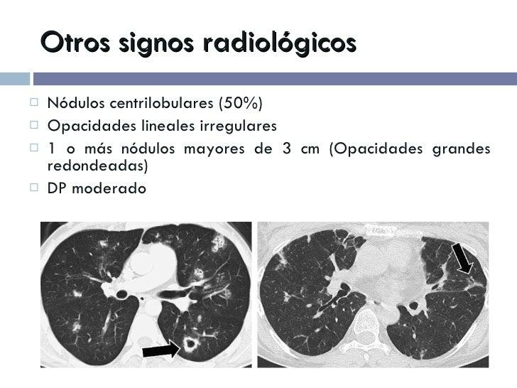 Otros signos radiológicos <ul><li>Nódulos centrilobulares (50%) </li></ul><ul><li>Opacidades lineales irregulares </li></u...
