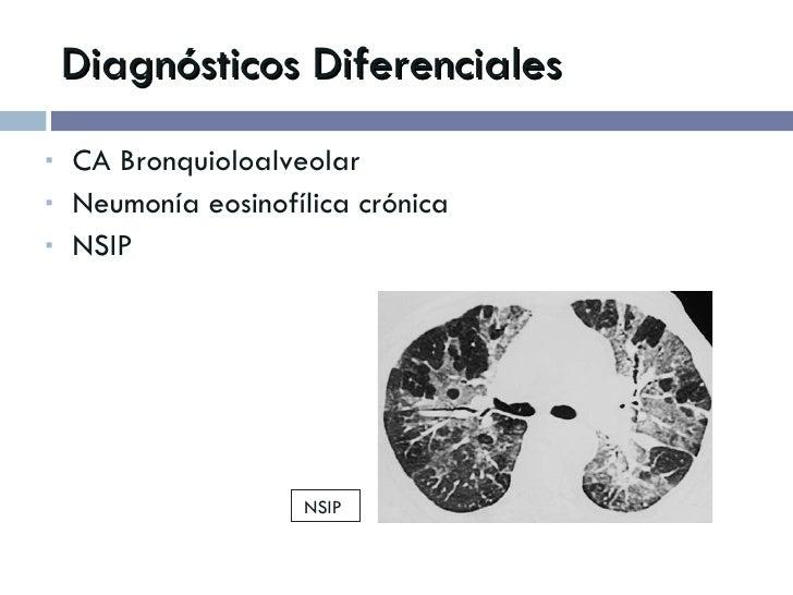 Diagnósticos Diferenciales <ul><li>CA Bronquioloalveolar </li></ul><ul><li>Neumonía eosinofílica crónica </li></ul><ul><li...