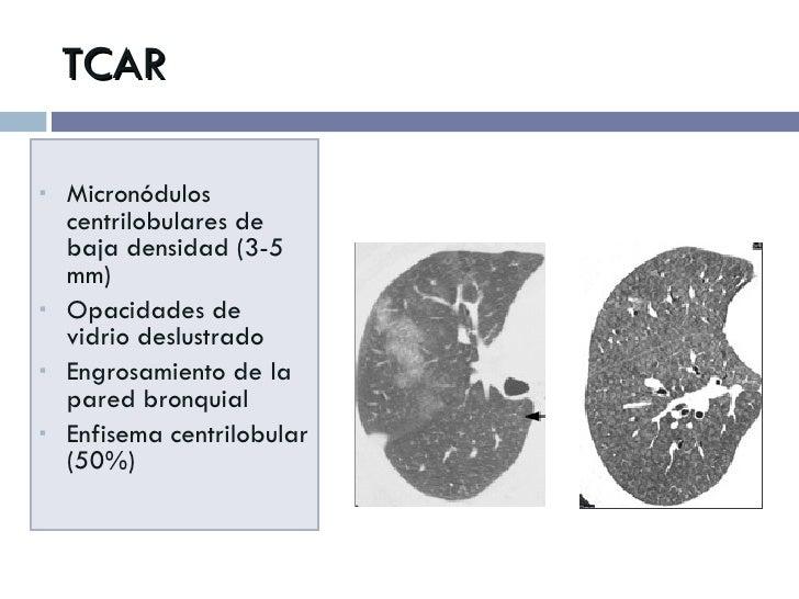 TCAR <ul><li>Micronódulos centrilobulares de baja densidad (3-5 mm)  </li></ul><ul><li>Opacidades de vidrio deslustrado </...