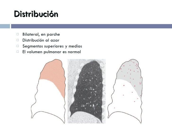 Distribución <ul><li>Bilateral, en parche </li></ul><ul><li>Distribución al azar </li></ul><ul><li>Segmentos superiores y ...