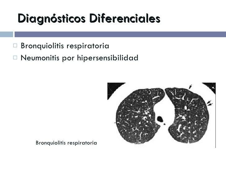 Diagnósticos Diferenciales <ul><li>Bronquiolitis respiratoria </li></ul><ul><li>Neumonitis por hipersensibilidad </li></ul...