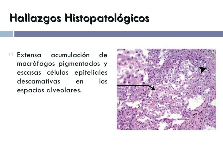 Hallazgos Histopatológicos <ul><li>Extensa acumulación de macrófagos pigmentados y escasas células epiteliales descamativa...