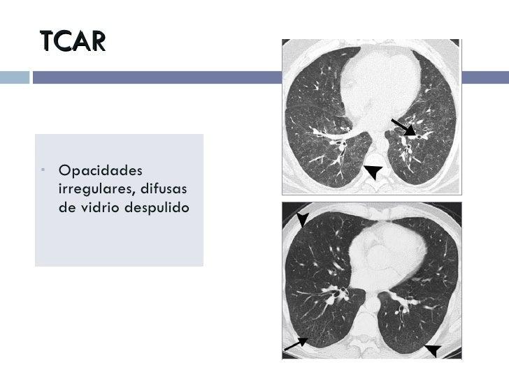 TCAR <ul><li>Opacidades irregulares, difusas de vidrio despulido </li></ul>