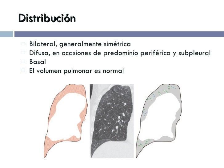 Distribución <ul><li>Bilateral, generalmente simétrica </li></ul><ul><li>Difusa, en ocasiones de predominio periférico y s...