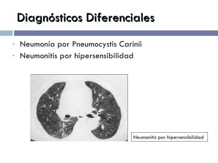 Diagnósticos Diferenciales <ul><li>Neumonía por Pneumocystis Carinii </li></ul><ul><li>Neumonitis por hipersensibilidad </...
