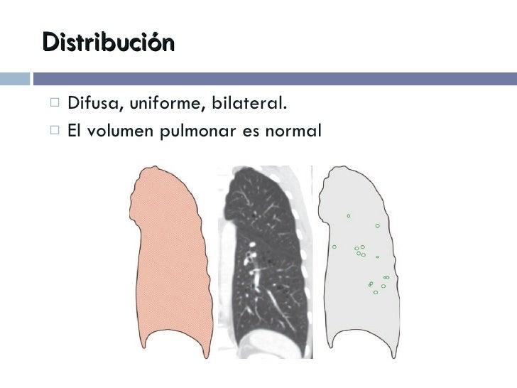 Distribución <ul><li>Difusa, uniforme, bilateral. </li></ul><ul><li>El volumen pulmonar es normal </li></ul>