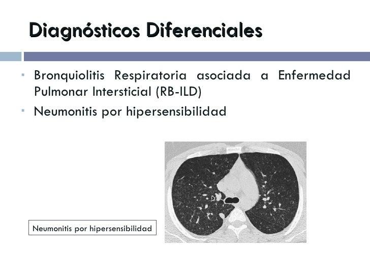 Diagnósticos Diferenciales <ul><li>Bronquiolitis Respiratoria asociada a Enfermedad Pulmonar Intersticial (RB-ILD) </li></...