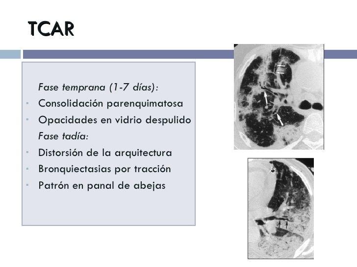 TCAR <ul><li>Fase temprana (1-7 días): </li></ul><ul><li>Consolidación parenquimatosa </li></ul><ul><li>Opacidades en vidr...