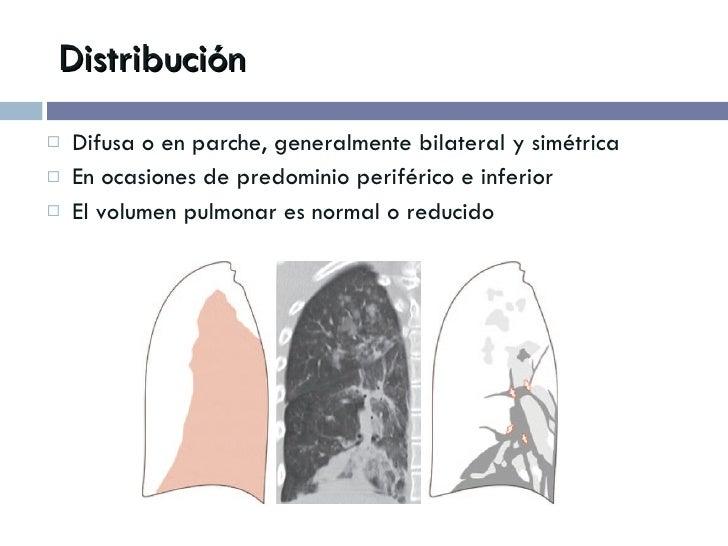 Distribución <ul><li>Difusa o en parche, generalmente bilateral y simétrica </li></ul><ul><li>En ocasiones de predominio p...