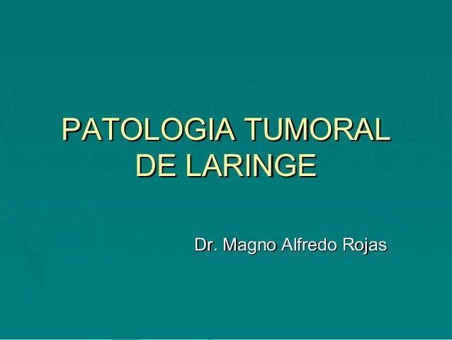 PATOLOGIA TUMORALPATOLOGIA TUMORAL DE LARINGEDE LARINGE Dr. Magno Alfredo RojasDr. Magno Alfredo Rojas