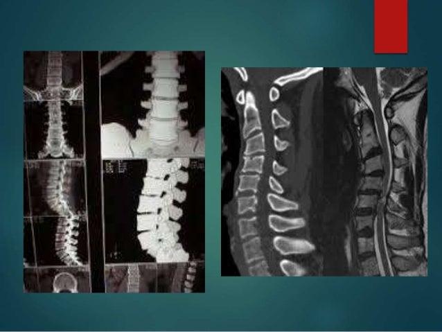 Patologia medular no traumatica udabol (6)