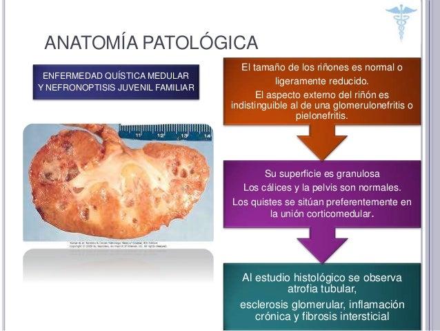 Patologia quistica renal
