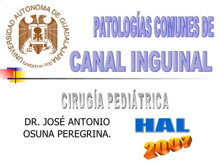 DR. JOSÉ ANTONIO OSUNA PEREGRINA. CANAL INGUINAL  PATOLOGÍAS COMUNES DE 2007 CIRUGÍA PEDIÁTRICA HAL