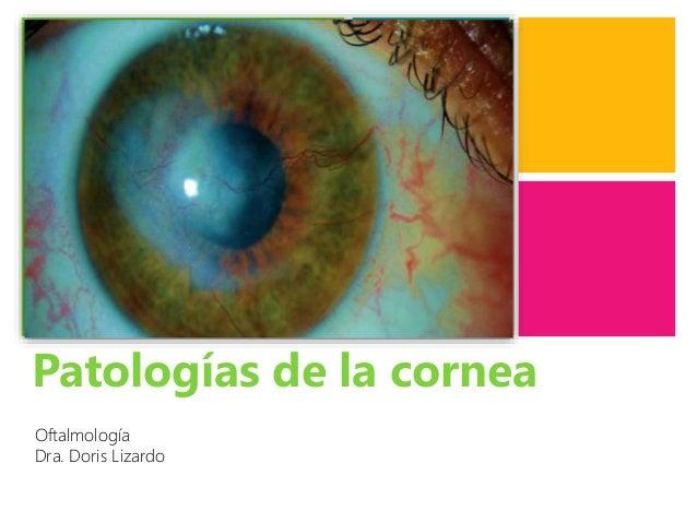 + Patologías de la cornea Oftalmología Dra. Doris Lizardo