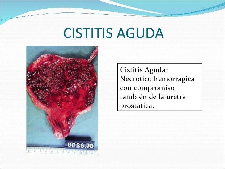 CISTITIS AGUDA Cistitis Aguda: Necrótico hemorrágica con compromiso también de la uretra prostática.