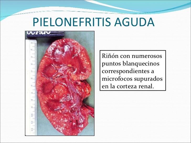 PIELONEFRITIS AGUDA  Riñón con numerosos puntos blanquecinos correspondientes a microfocos supurados en la corteza renal.