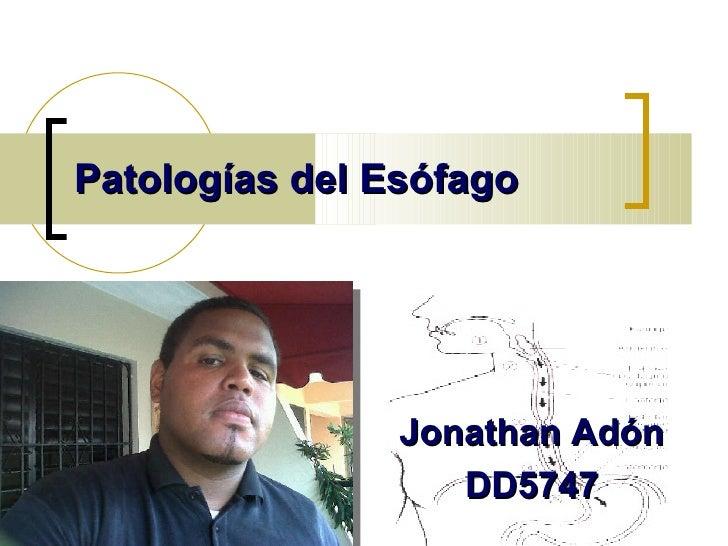 Patologías del Esófago   Jonathan Adón  DD5747