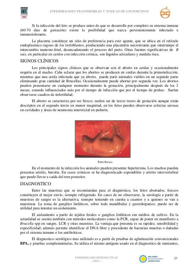 Excelente Prueba Anatomía Cerdo Fetal Viñeta - Anatomía de Las ...