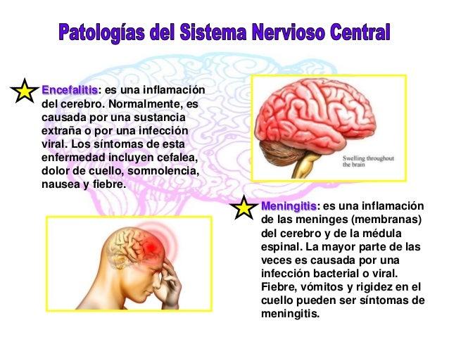 PATOLOGIAS DEL SISTEMA NERVIOSO DOWNLOAD