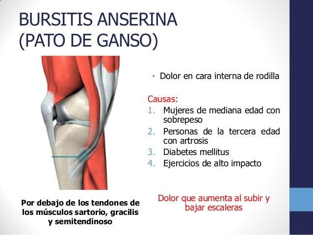 Ligamentos rehabilita t neurodesarrollo y fisioterapia - Dolor en la parte interior de la rodilla ...