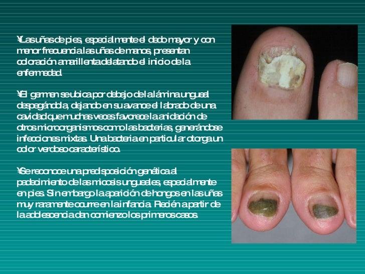 Patologias De UñAs Y Pies