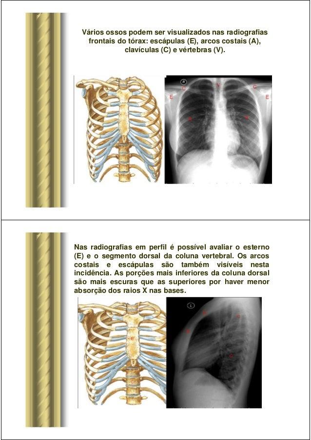Patologias do tórax Slide 2