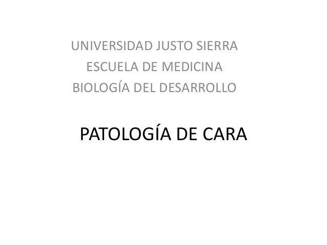 UNIVERSIDAD JUSTO SIERRA  ESCUELA DE MEDICINA  BIOLOGÍA DEL DESARROLLO  PATOLOGÍA DE CARA