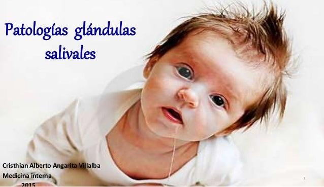Patologías glándulas salivales Cristhian Alberto Angarita Villalba Medicina interna 1