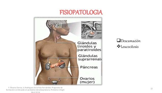FISIOPATOLOGIA Descamación Leucocitosis F. Álvarez Garcia, V. Rodriguez de la Rúa Fernández. Programa de formación conti...