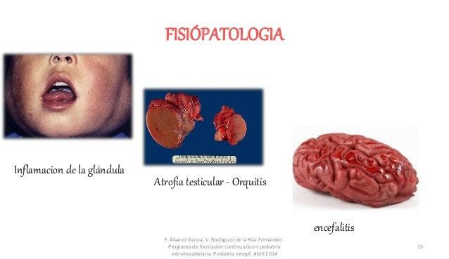 FISIÓPATOLOGIA Inflamacion de la glándula Atrofia testicular - Orquitis encefalitis F. Álvarez Garcia, V. Rodriguez de la ...