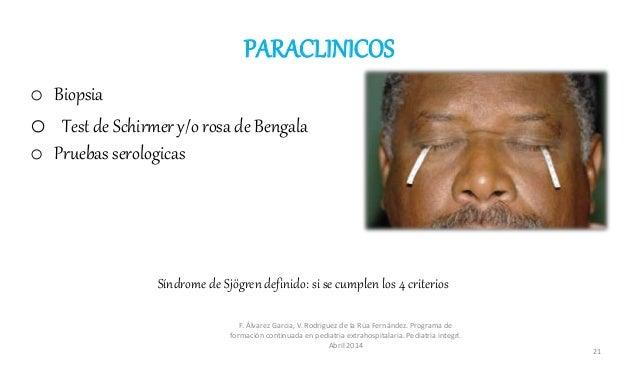 PARACLINICOS o Biopsia o Test de Schirmer y/o rosa de Bengala o Pruebas serologicas F. Álvarez Garcia, V. Rodriguez de la ...
