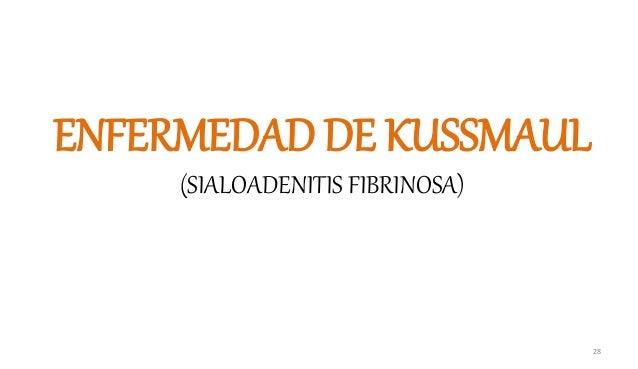 ENFERMEDAD DE KUSSMAUL (SIALOADENITIS FIBRINOSA) 28