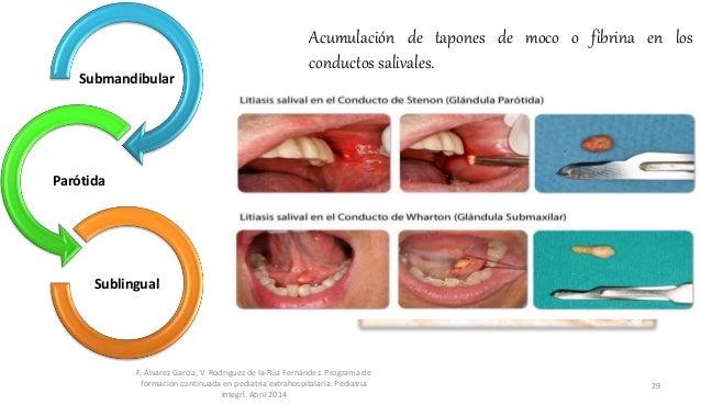 Acumulación de tapones de moco o fibrina en los conductos salivales. F. Álvarez Garcia, V. Rodriguez de la Rúa Fernández. ...