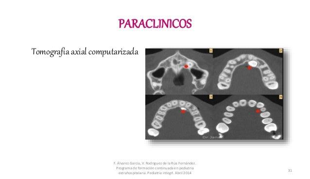 PARACLINICOS Tomografia axial computarizada F. Álvarez Garcia, V. Rodriguez de la Rúa Fernández. Programa de formación con...