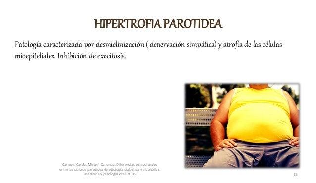 HIPERTROFIA PAROTIDEA Patología caracterizada por desmielinización ( denervación simpática) y atrofia de las células mioep...