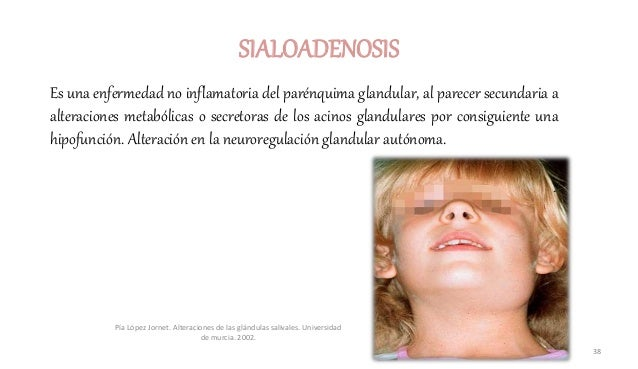 Es una enfermedad no inflamatoria del parénquima glandular, al parecer secundaria a alteraciones metabólicas o secretoras ...