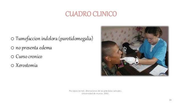 CUADRO CLINICO o Tumefaccion indolora (parotidomegalia) o no presenta edema o Curso cronico o Xerostomia Pía López Jornet....