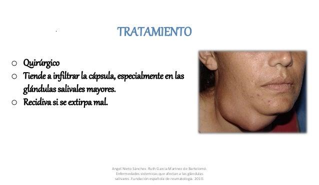 o Quirúrgico o Tiende a infiltrar la cápsula, especialmente en las glándulas salivales mayores. o Recidiva si se extirpa m...