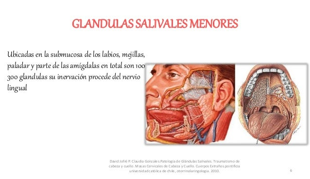 Patologias glandulas salivales