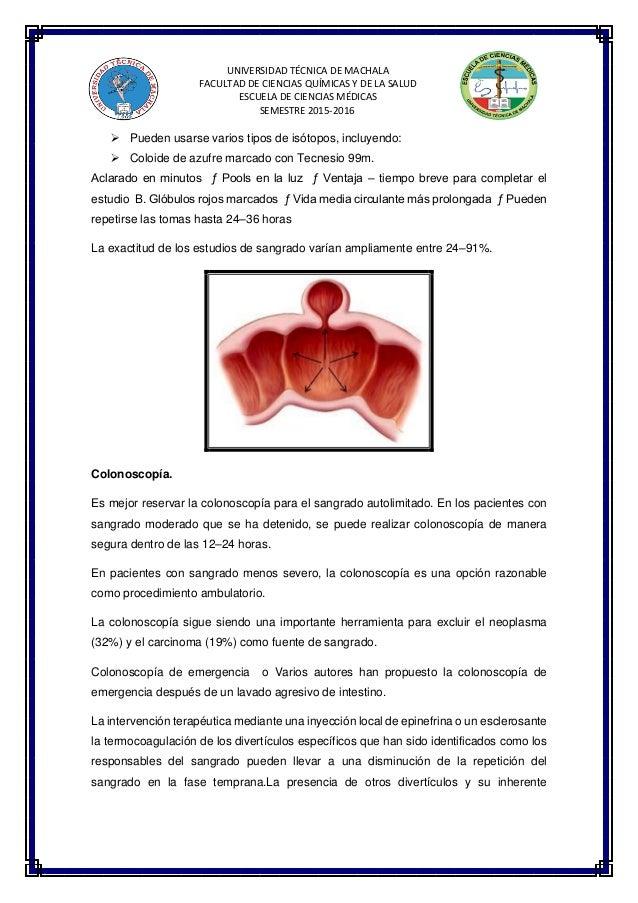 Lujo Foto Marcada Del Sistema Digestivo Adorno - Imágenes de ...