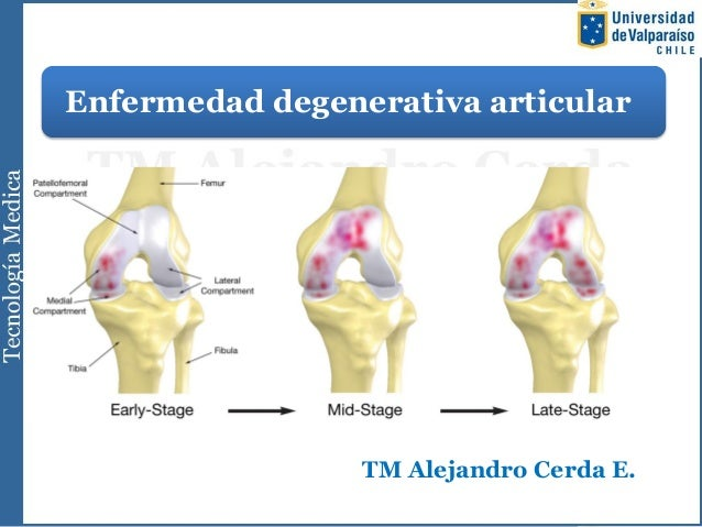 Enfermedad degenerativa articularTM Alejandro Cerda E.