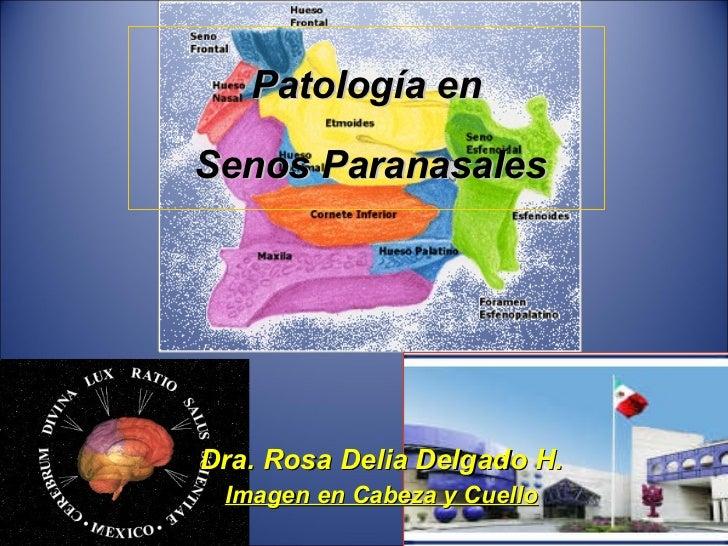 Patología en   Senos Paranasales    Dra. Rosa Delia Delgado H. Imagen en Cabeza y Cuello