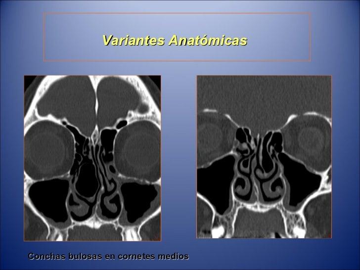 Moderno Ct Anatomía Del Pecho Imágenes - Anatomía de Las Imágenesdel ...
