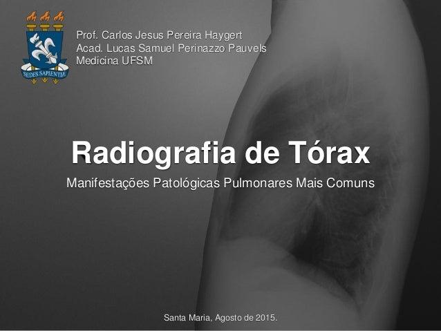 Radiografia de Tórax Manifestações Patológicas Pulmonares Mais Comuns Prof. Carlos Jesus Pereira Haygert Acad. Lucas Samue...