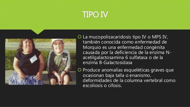 TIPO IV  La mucopolisacaridosis tipo IV o MPS IV, también conocida como enfermedad de Morquio es una enfermedad congénita...